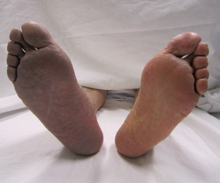 Right foot cyanosis due to acute arterial thrombosis, Image credit