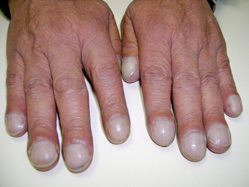 Digital Clubbing or Nail Clubbing - Causes and Grading | medcaretips.com