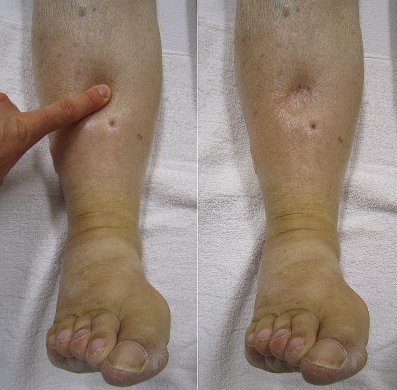 bilateral pitting edema