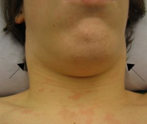 A person with swollen cervical lymph nodes, Image from Wikipedia under GNFL