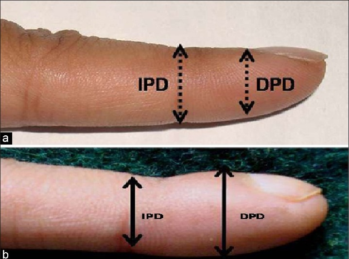 Phalangeal Depth in digital clubbing