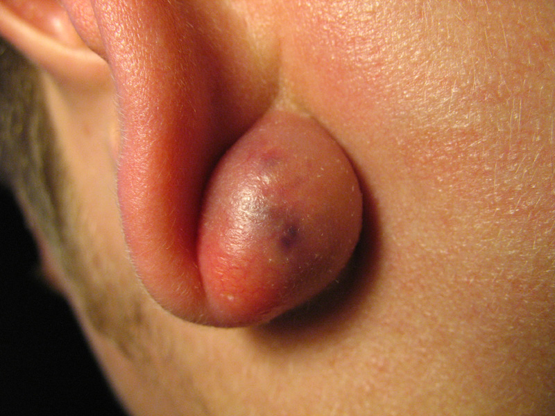 Infected sebaceous cyst