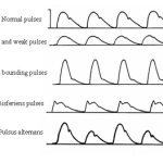 different types of abnormal pulses