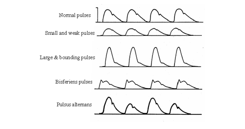 pulse different types