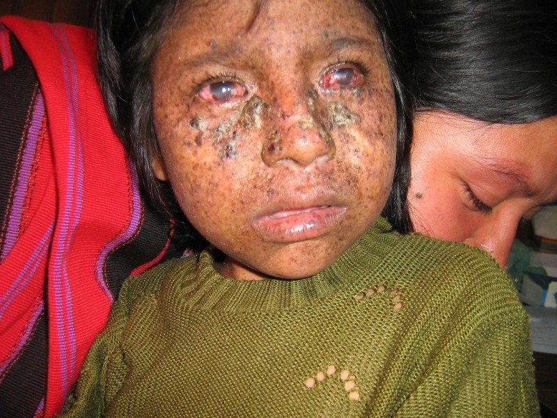 A girl with xeroderma pigmentosum