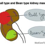 ball and bean shape renal mass