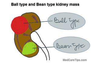 ball and bean shape renal mass