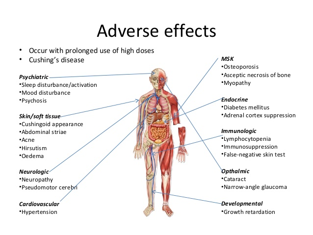 Diabetes and cortisone use