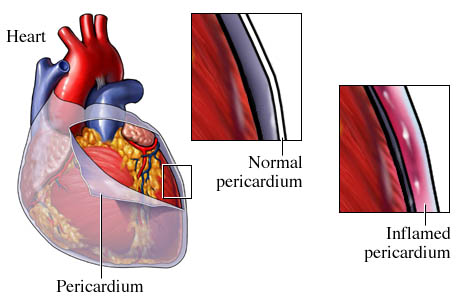 inflammatory-heart-disease-pericarditis