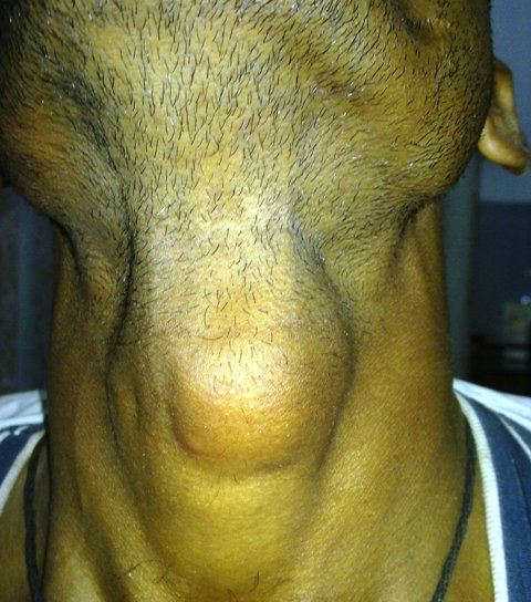 A swelling in Anterior Aspect of Neck