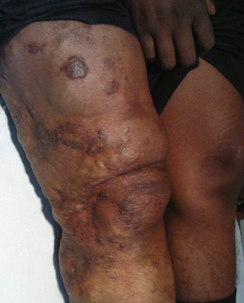 Chronic Venous Insufficiency -Same Limb From Lateral Side