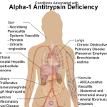 Alpha 1 Antitrypsin Deficiency or A1AT Deficiency – Presentation and Treatment