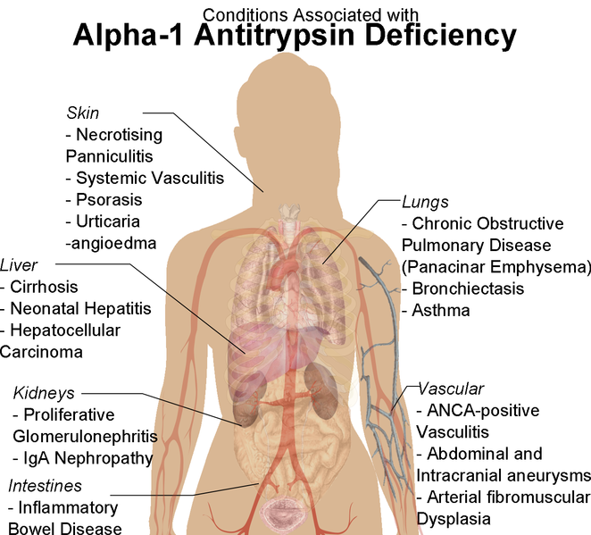 conditions-associated-with-alpha-1-antitrypsin-deficiency