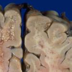 Progressive Multifocal Leukoencephalopathy or PML