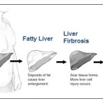 Cirrhosis formation in alcoholic liver disease