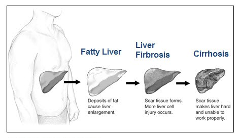 alcoholic-liver-disease