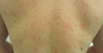 Pityriasis Rosea- Causes, Symptoms and Treatment