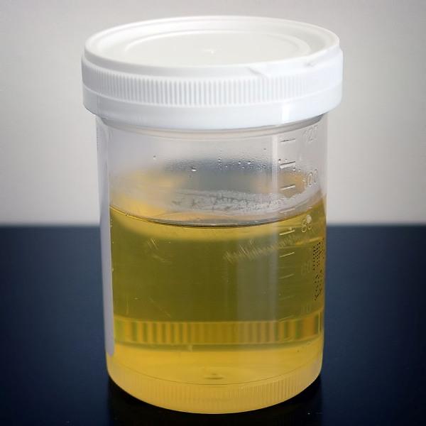 urine sample for urine problems