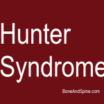 hunter syndrome image 2