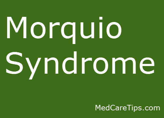 morquio-syndrome-image