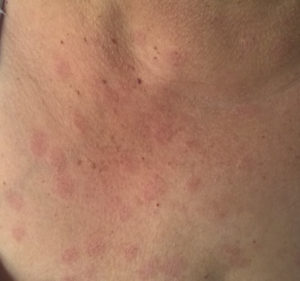 Urticaria on neck and upper chest