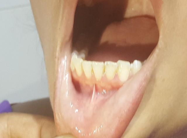Oral examination of lip mucosa
