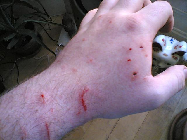 Cat Bite Wound