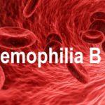 Hemophilia B – Causes, Presentation and Treatment