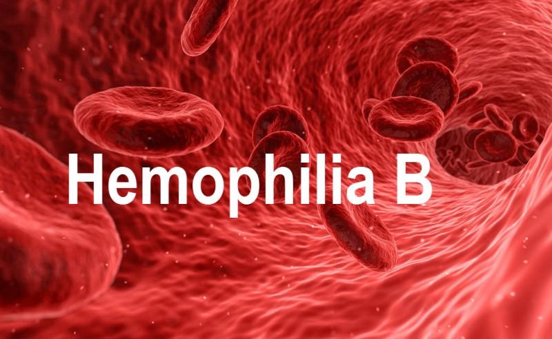 Hemophilia B Presentation and Treatment
