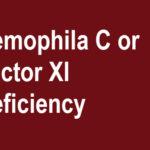 Hemophilia C Presentation and Treatment