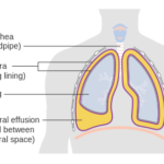 Pleural Effusion Causes and Treatment