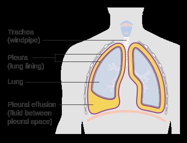 Image depicting pleural effusion