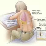 thoracentesis or thoracocentesis