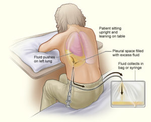 Thoracentesis or thoracocentesis – Indications and Procedure