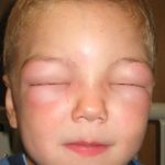 Angioedema Causes and Treatment