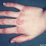 Dermatomyositis Presentation and Treatment