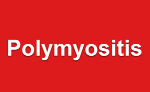 Polymyositis Presentation and Treatment