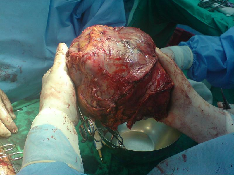 Liver tumor after removal
