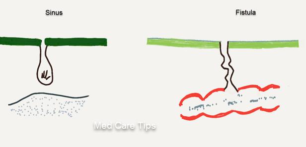 Sinus and Fistula