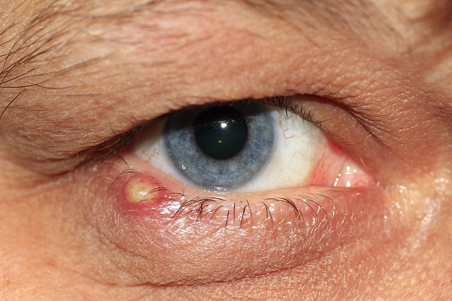 Stye is a bacterial infection