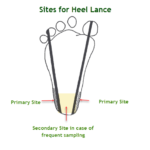 Heel Stick or Heel Lance for Blood Sampling