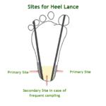 Heel Stick or Heel Lance for Blood Sampling