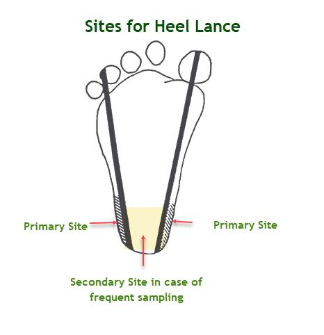 Heel Stick or Heel Lance
