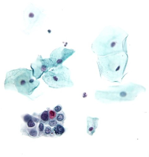 HSIL in Bethesda system Pap Stain, image in gnu