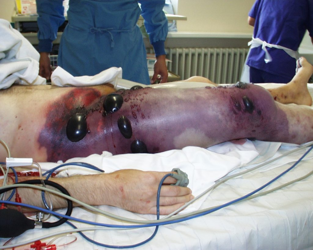 Gas gangrene with blisters