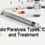 periodic paralysis causes and treatment