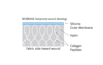 Bio brane is a synthetic skin substitutes