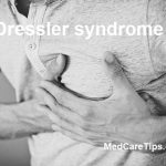 Dressler syndrome