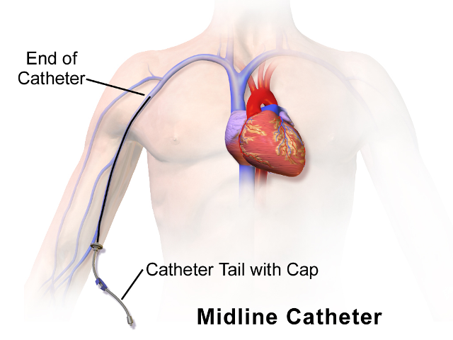 A midline catheter is type of venous access devices