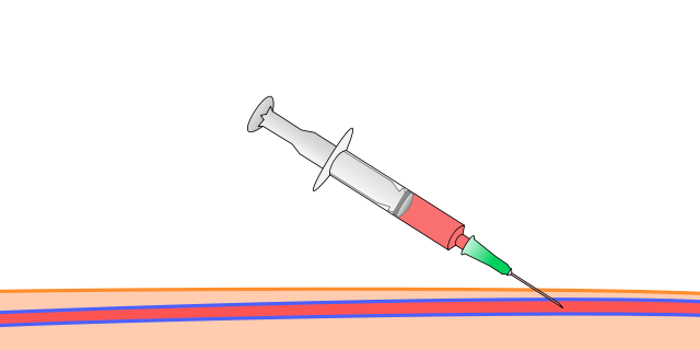 First step of seldinger technique is needle insertion